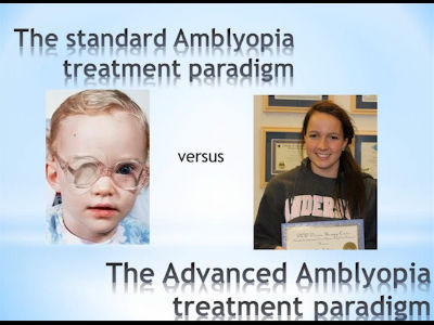 Amblyopia Powerpoint Slide Show